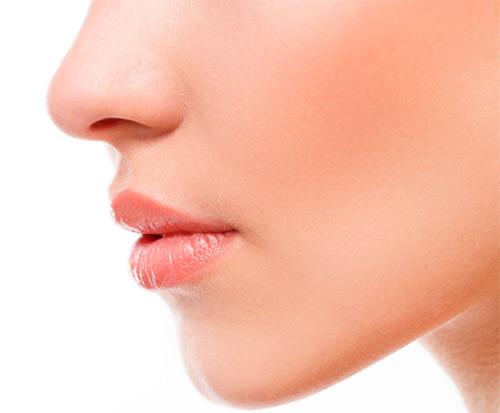 Tratamiento del Acné -Clínica Carrasco-