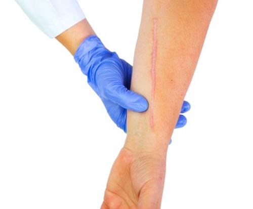 Tratamiento de Cicatrices -Clínica Carrasco-