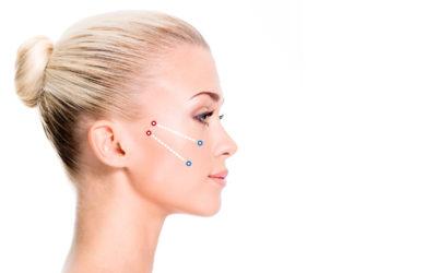 Definición del contorno facial sin cirugía